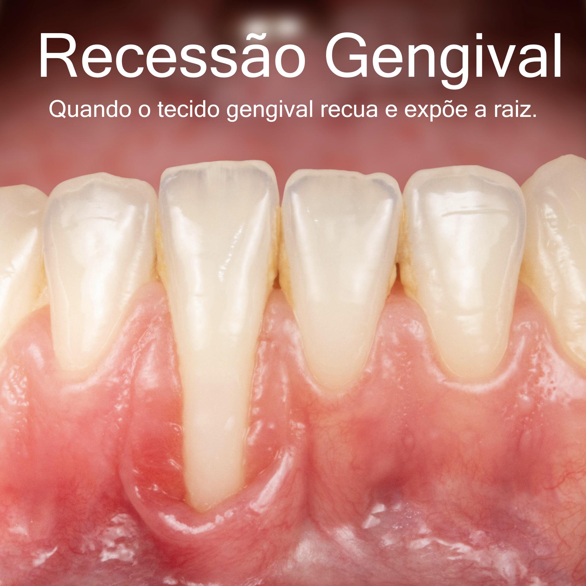 Copy Recessão Gengival.001